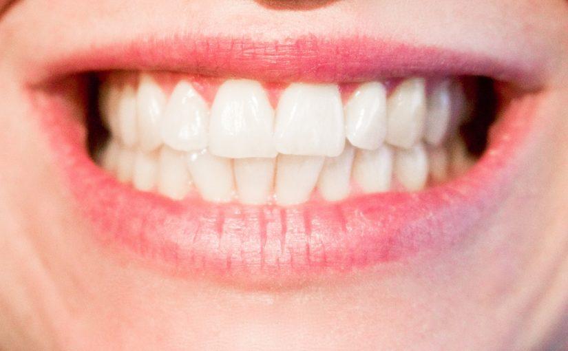 Aktualna technika stosowana w salonach stomatologii estetycznej zdoła sprawić, że odzyskamy ładny uśmiech.